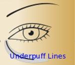 Underpuff lines